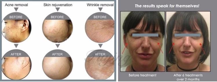 مزایای استفاده از دستگاه استند نوردرمانی ال ای دی برای پوست