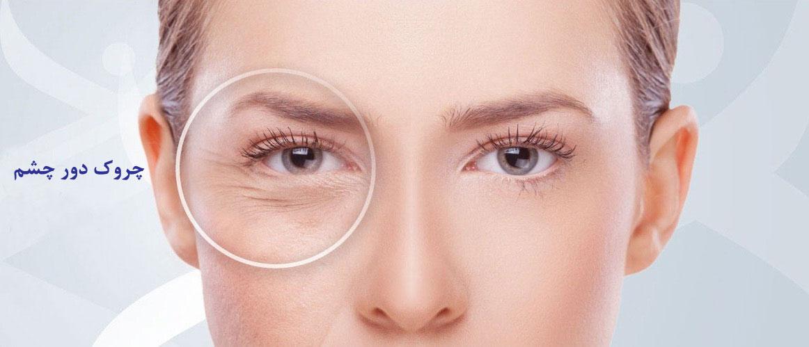 دستگاه رفع چین و چروک چشم Ebb Eye