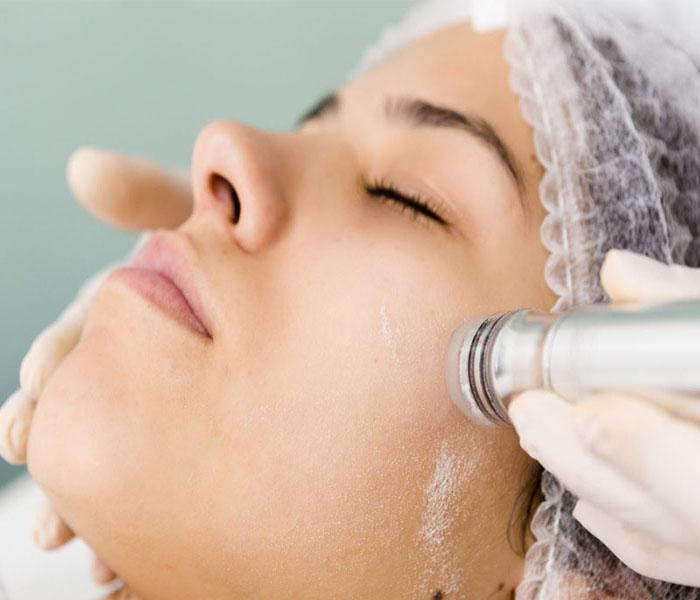 کاربرد میکرودرم ابریژن برای پوست