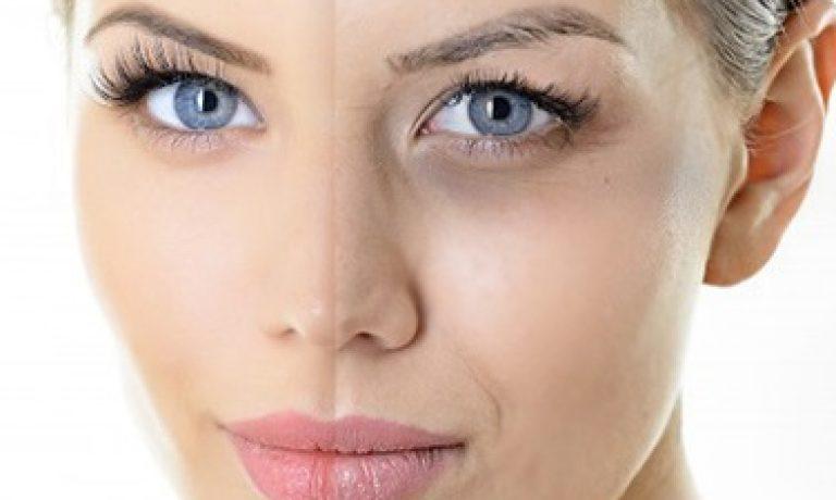 درمان رفع تیرگی چشم با کربوکسی تراپی