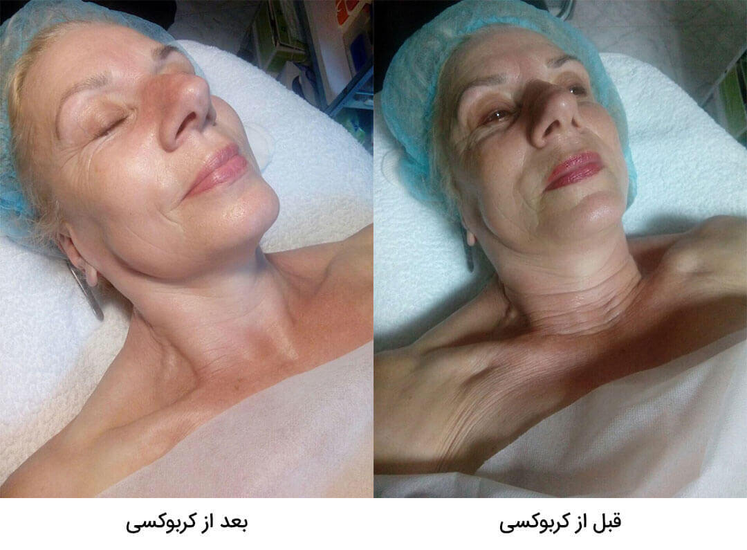 قبل و بعد کربوکسی تراپی - اثرات ژل کربوکسی