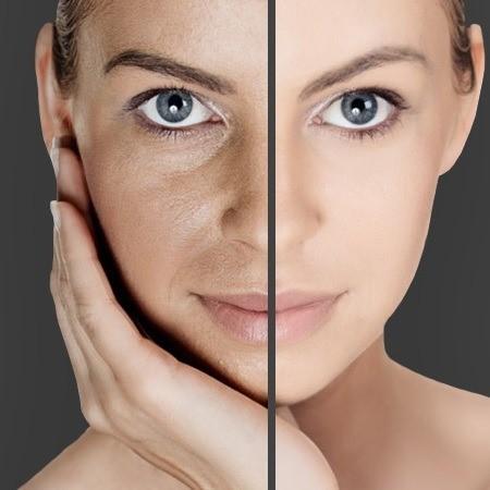 عملکرد دستگاه میکرودرم ابریژن برای پوست